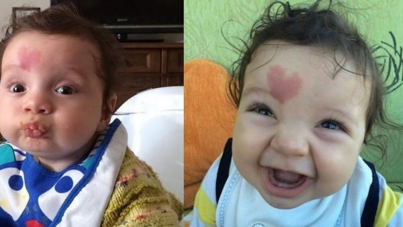Turquía: Nació un bebé con una mancha de forma de corazón en la frente