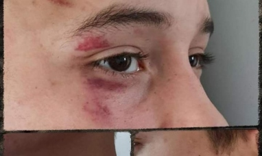 Tierra del Fuego: Denuncia de brutalidad policial en Ushuaia